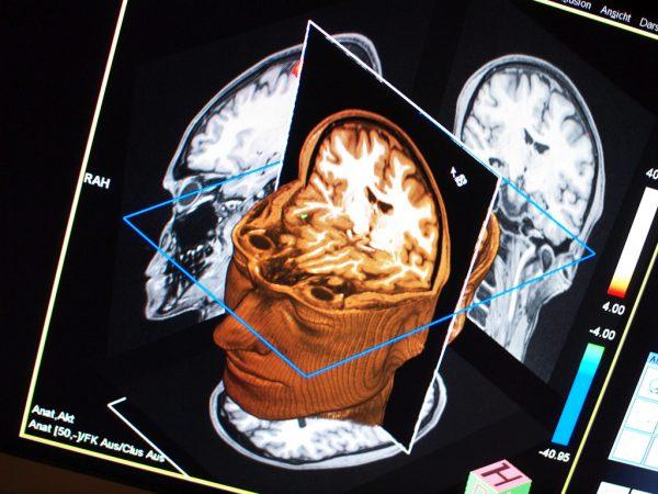 Un Algoritmo predittivo per prevenire l'Alzheimer
